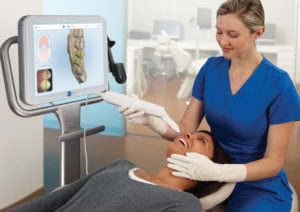 Odontoiatra che utilizza uno scanner digitale intraorale su una paziente