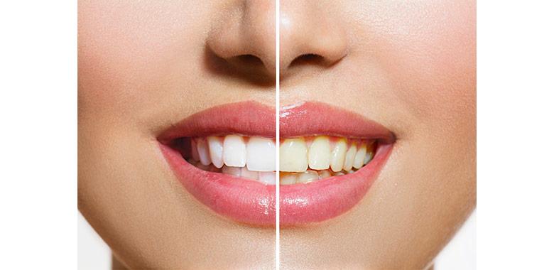 Bocca femminile sorridente con una parte della dentatura sbiancata