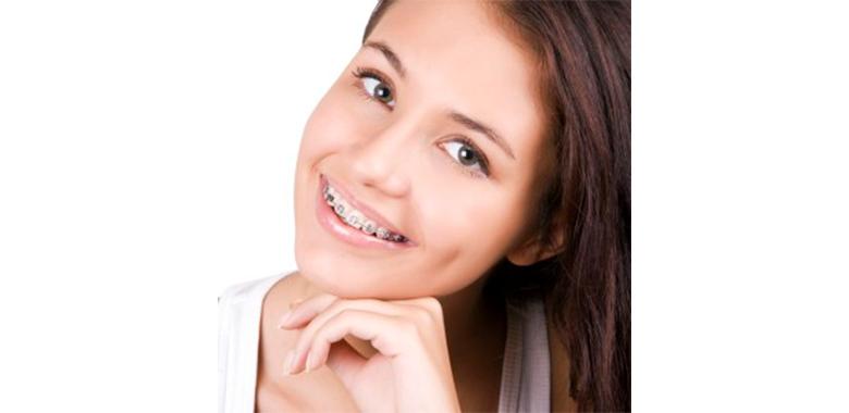Ragazza con apparecchio ortodontico tradizionale