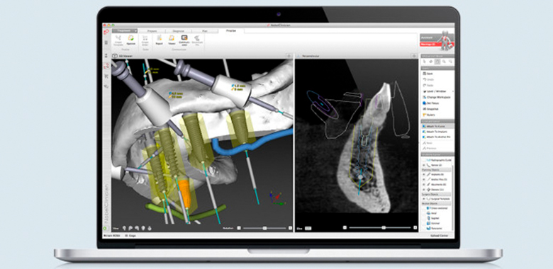 Immagine computerizzata di chirurgia guidata