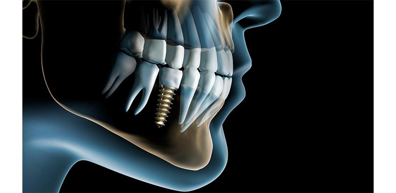 Illustrazione 3D di dentatura con protesi a carico immediato
