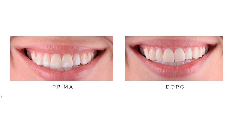 Comparazione dentatura prima e dopo il trattamento smalto