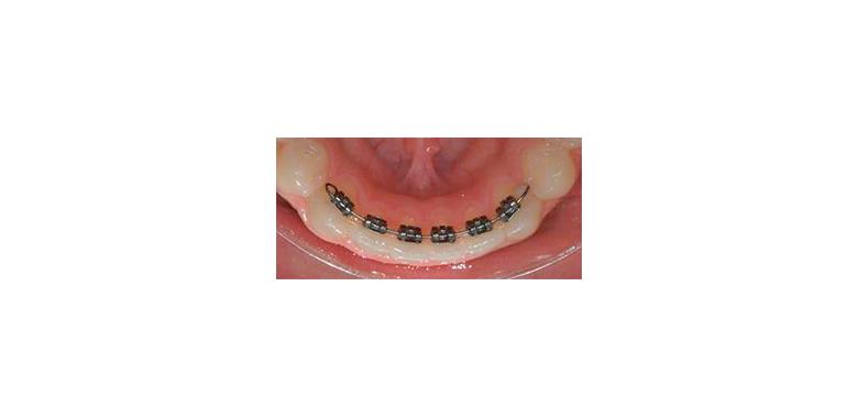 Arcata dentale con apparecchio Self-ligating